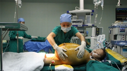 15 kg of tumor was removed from the belly of twelve year old school girl