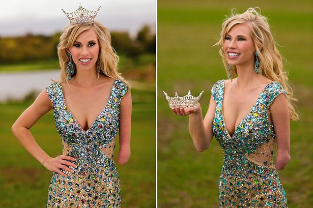 Disabled Woman who won Miss Iowa 2014 title, now inspiring others