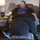The man with giant testicles, finally raised fund for life changing operation