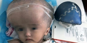 Chinese Girl Becomes World's First To Receive Full Skull Reconstruction Via 3D