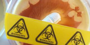 Superbug that resists 'antibiotic of last resort' found in US